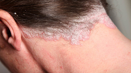Left or right psoriase